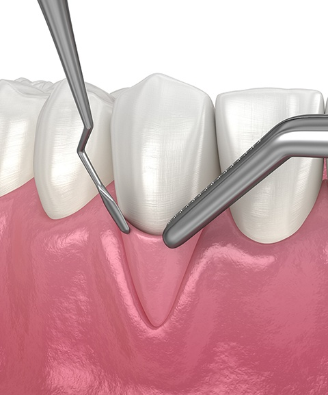 Patient receiving non surgical periodontal therapy