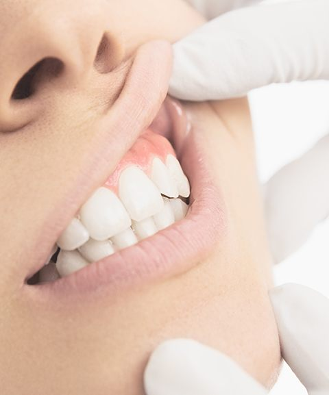Periodontist performing oral cancer screening