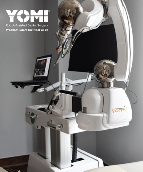 Yomi robot assisted dental implant surgery system