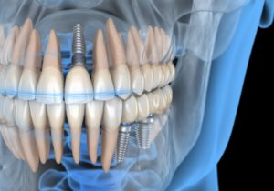 Illustration of three dental implants in Mayfield Heights in jawbone